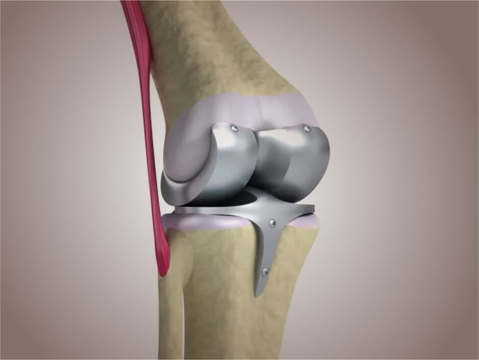 Best tkr surgery Surgeon/Doctor/Hospital/Clinic in Ahmedabad, Gujarat, Total Knee Replacement Surgeon Ahmedabad