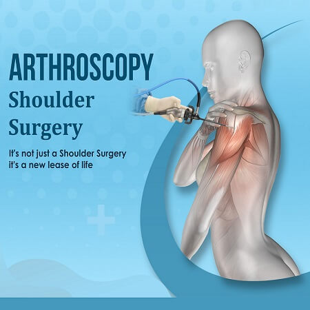 Best 5 arthroscopy surgeon, doctor hospital Ahmedabad, Gujarat
